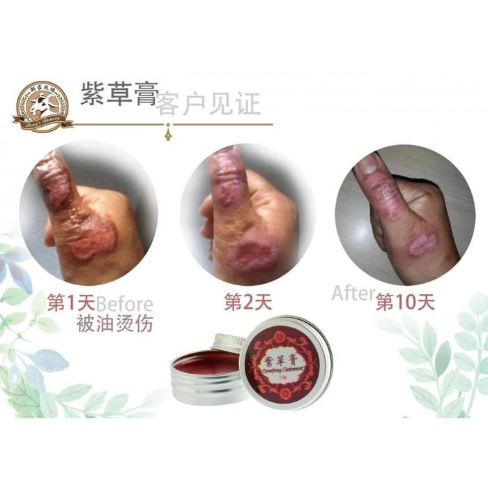 Comfrey Ointment 紫草膏